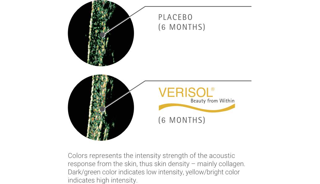 verisol gęstość skóry