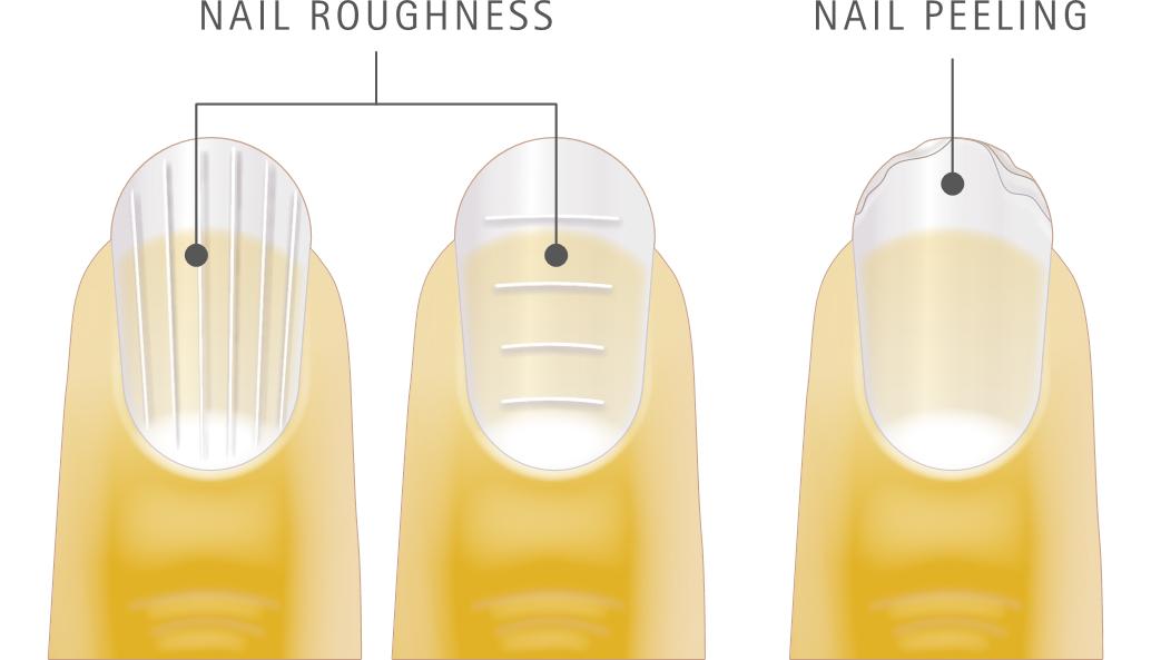verisol uszkodzenia paznokci